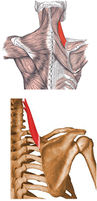 pinched nerve neck pain the posture problem and avoiding