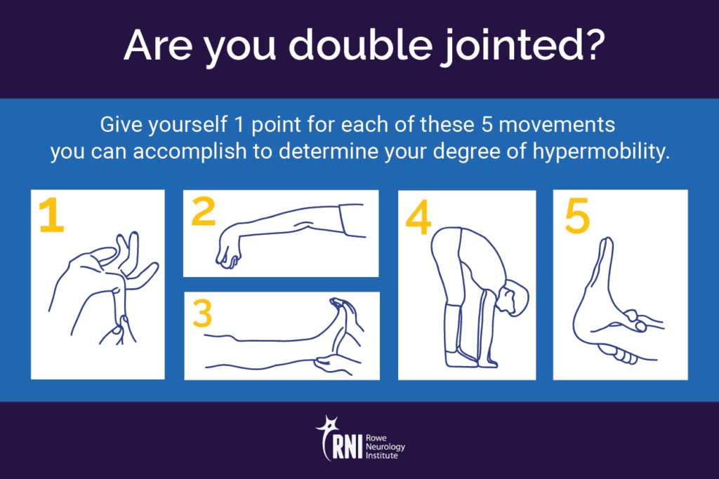Are You Hyperflexible The Neurology Of Hypermobility Rowe Neurology Institute
